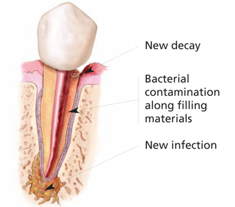 Endodontic Re-Treatments